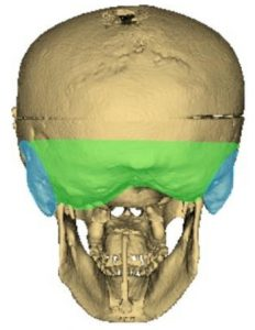 Ultrasound image of posterior skull for paper by Queen's University researcher, Dr. Gabor Fichtinger