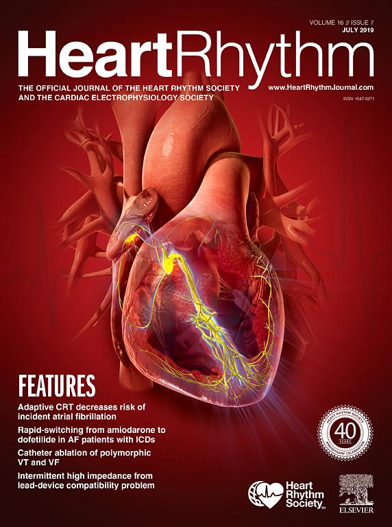 heart rhythm vol 16